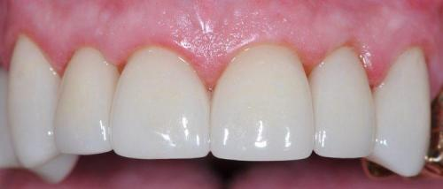MALE PATIENT AFTER SIX ALL-CERAMIC CROWNS