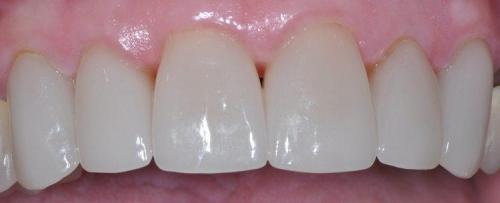 FEMALE PATIENT AFTER SIX ALL-CERAMIC CROWNS