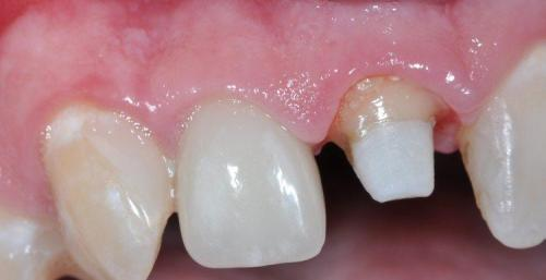 PATIENT MISSING CROWN FROM FRONT TOOTH