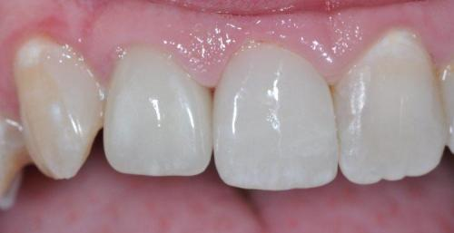 FRONT TOOTH RESTORED WITH ALL-CERAMIC CROWN