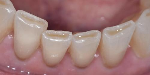 PATIENT BEFORE TREATMENTFront teeth restored with resins.