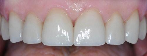 EMAX ALL CERAMIC CROWNS