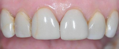 DISCOLORED RESIN VENEERS